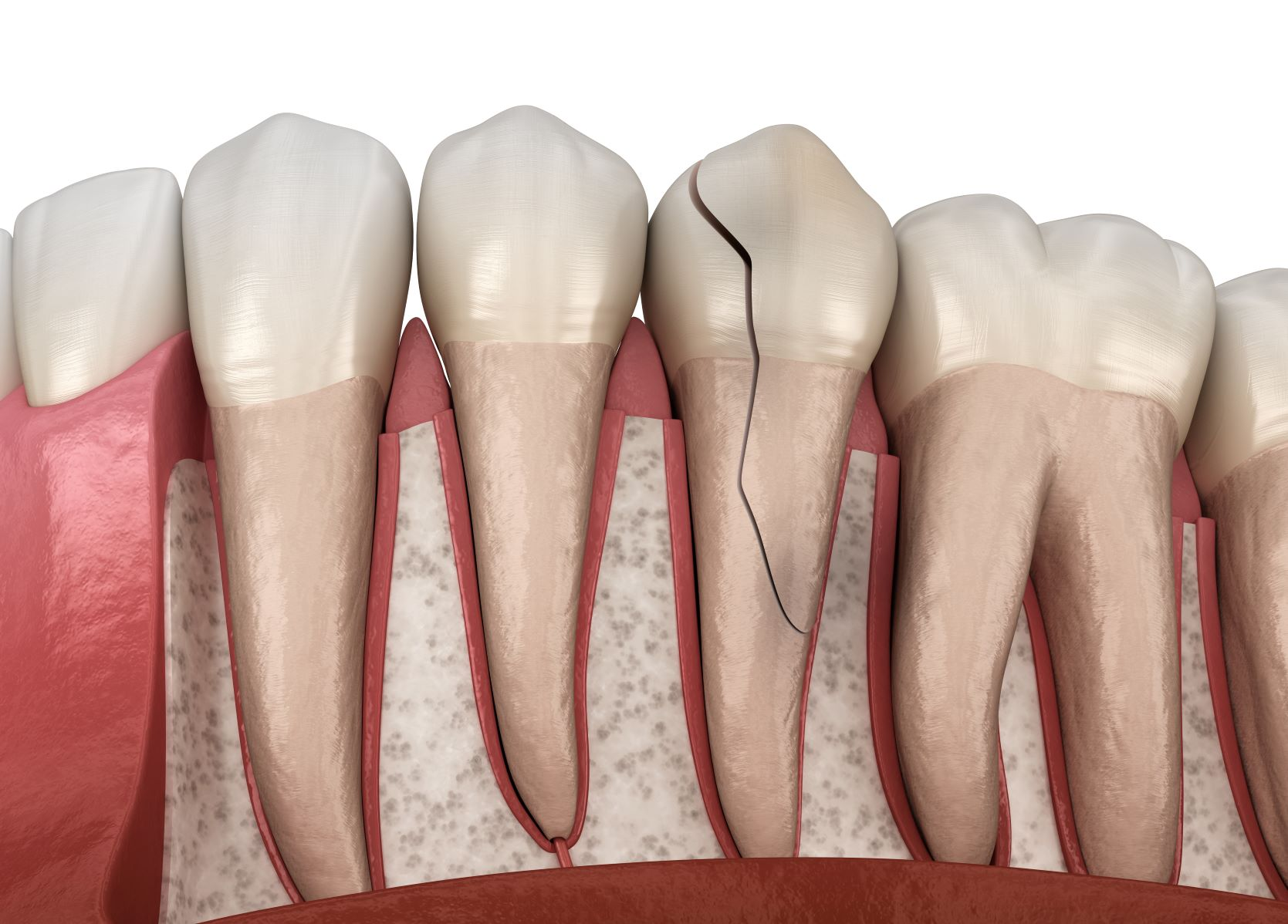 Cracked Tooth Repair Casper WY